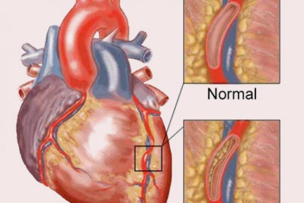 โรคหลอดเลือดหัวใจตีบ ผนังหลอดเลือดหัวใจเสื่อมสภาพ