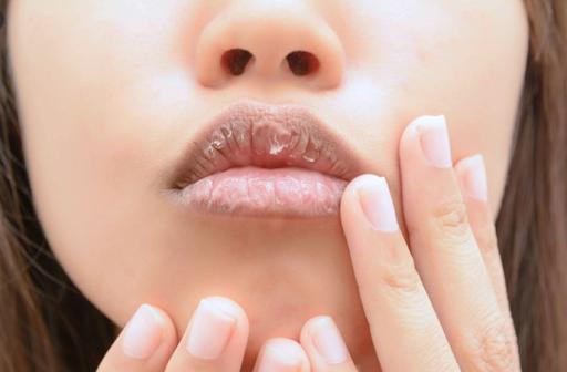 ปัญหาปากแห้งแตก -ภาวะขาดน้ำ