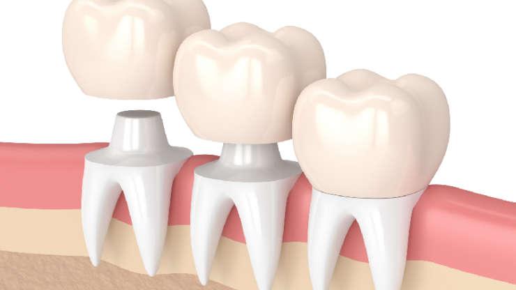 ปัญหาการนอนกัดฟัน-การใส่ครอบฟัน