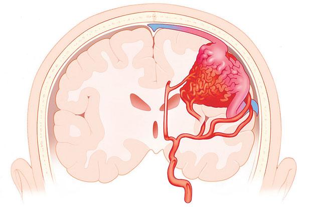 ภาวะเส้นเลือดในสมองแตก