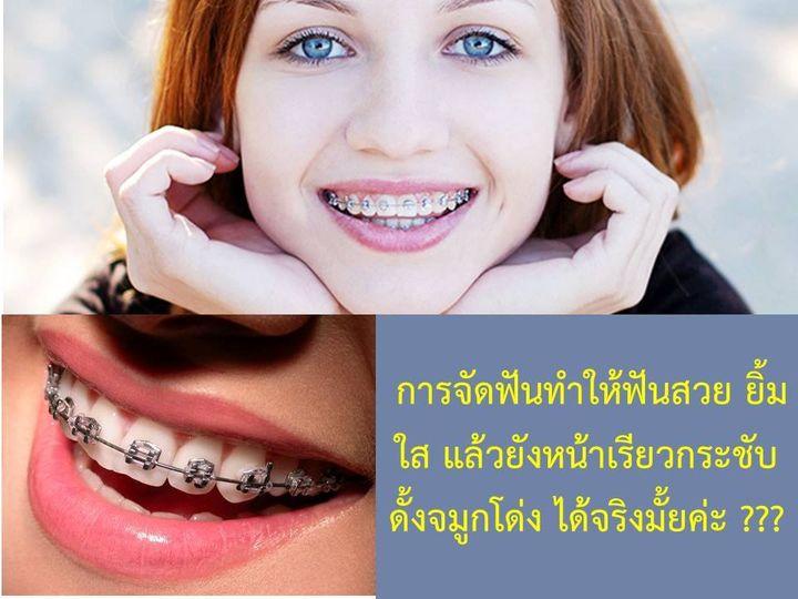 จริงหรือไม่ การจัดฟัน ช่วยทำให้ดั้งโด่ง