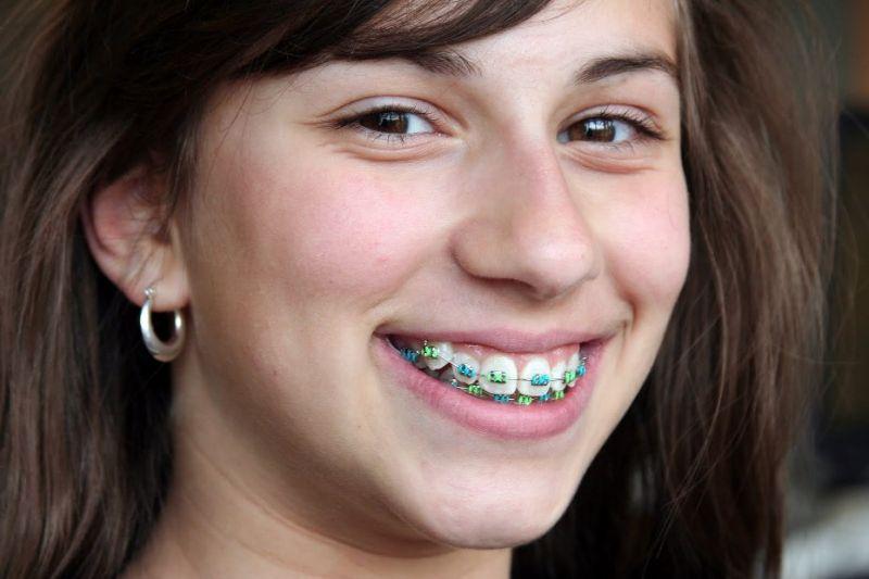 การจัดฟัน ทำให้เรายิ้มสวยขึ้นจริงหรือไม่