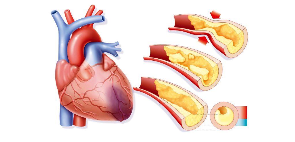 การเกิด โรคกล้ามเนื้อหัวใจตายเฉียบพลัน