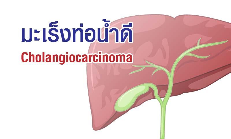 หลีกเลี่ยงโรคมะเร็ง 4 ประเภท - โรคมะเร็งในท่อน้ำดี